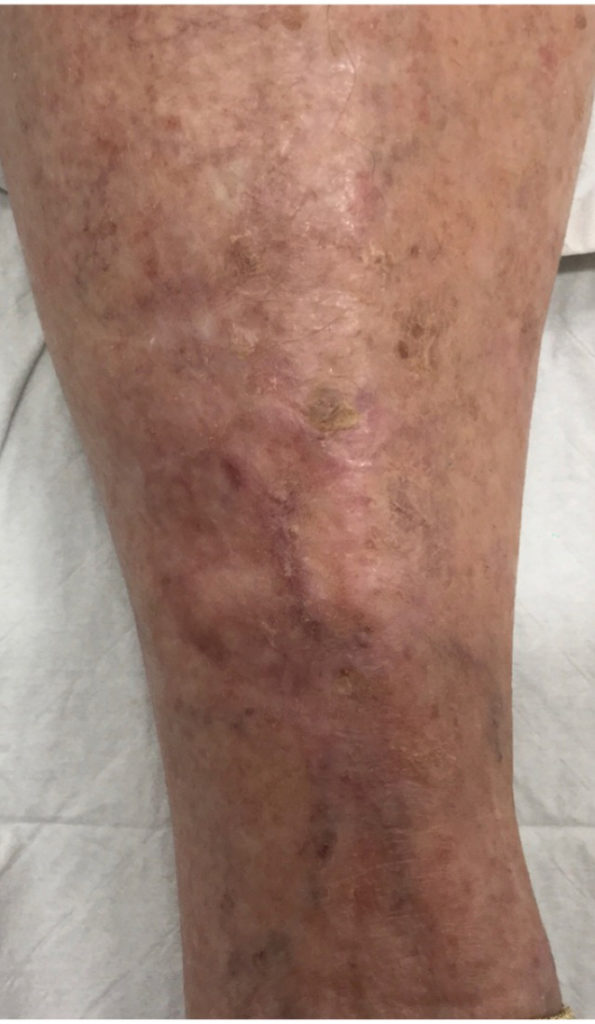 Skin Cancer Before and After Pictures in Melbourne, FL